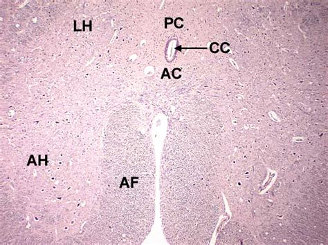 cross section of mammalian spinal cord chapter 8 page 10 histologyolm 4 0