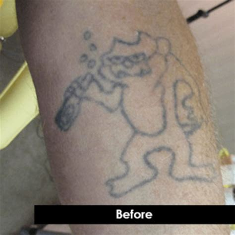 black ink tattoo removal before and after before and after laser removal photos