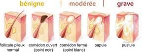 marine magpie topic scientific la peau partie 2