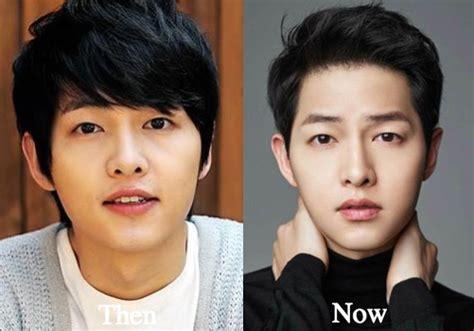 lee seung gi jaw surgery song joong ki plastic surgery before and after photos