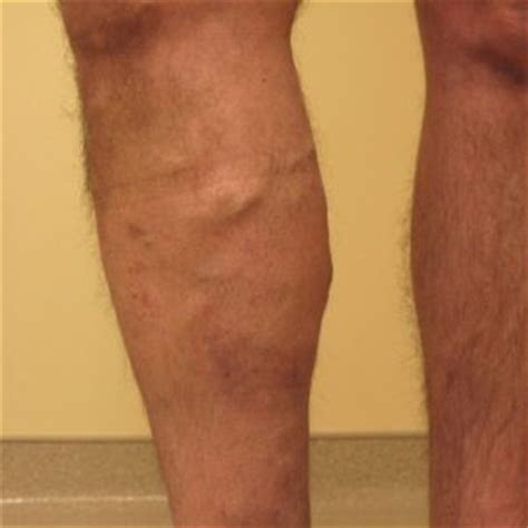 Blood Clot In Leg Treatment At Home by Treatment For Vein Thrombosis Archives
