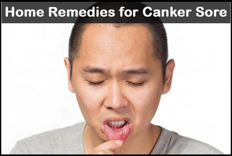 home remedies for canker sores 21 methods