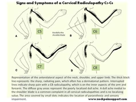 spine c4 c5 diagram mobilizing the neck and spine part 2 post competitive