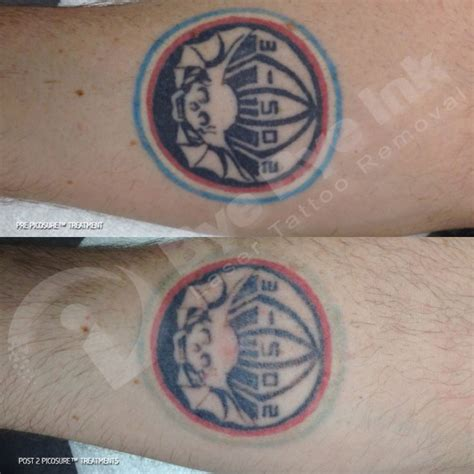 laser tattoo removal atlanta 20 best bye bye ink before and after images on