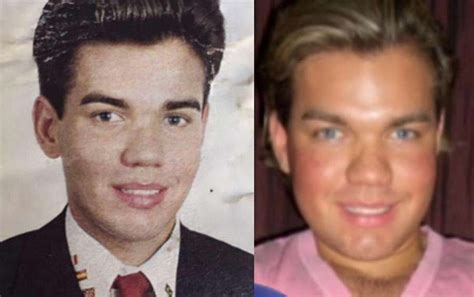 human ken doll before and after human ken doll before surgery 100
