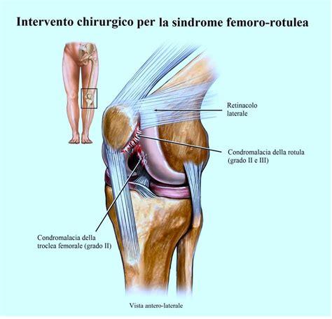 dolore parte interna ginocchio dolore al ginocchio interno esterno laterale cause