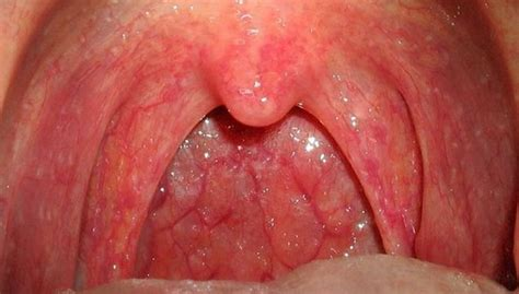 sore at back out thort sore throat on one side painful causes and treatment