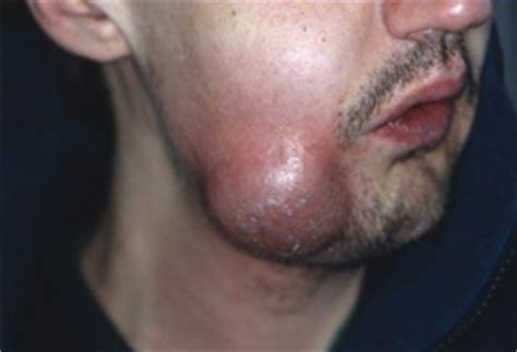 Tooth Abscess Picture