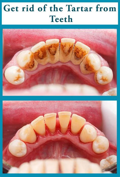 get rid of the tartar from teeth alone at home it is
