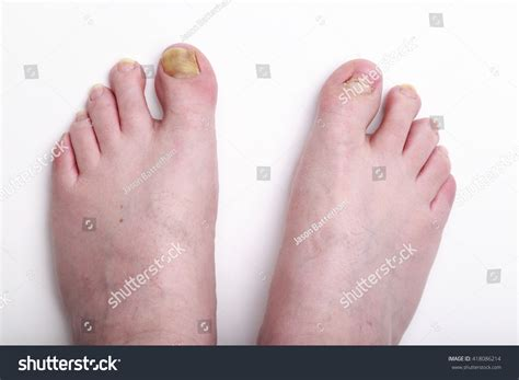 Date Interlude Physical Therapy For The Toe by 40 Year Caucasian Mans Stock Photo 418086214