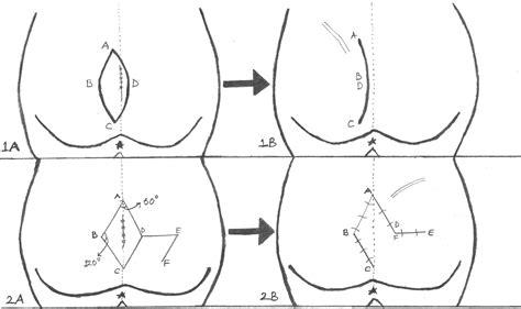 pilonidal cyst mri limberg flap or bascom for pilonidal cyst plastic