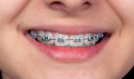 Untuk Pemutihan Gigi cara memutihkan gigi untuk gigi berbehel