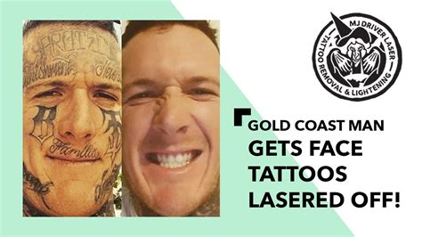 tattoo removal essex laser tattoo removal perth dr cosmetic laser mole