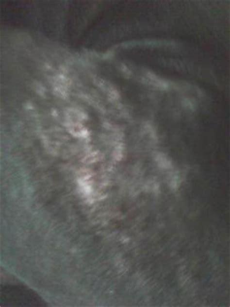bump dogs skin skin bumps