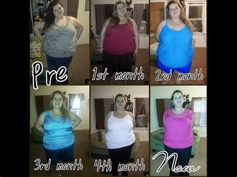 weight loss 6 months after gastric sleeve 1 month post op gastric sleeve weight loss crushnews