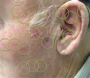 actinic keratosis derm ca