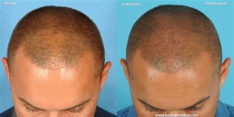 neograft hair transplant nyc fue hair restoration in dr alan bauman review plastic surgeon doctor florida