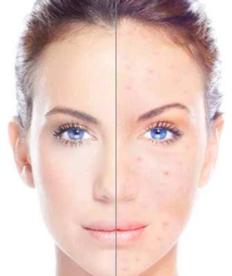 acne laser treatment the laser treatment clinic london high frequency facial london laser clinic