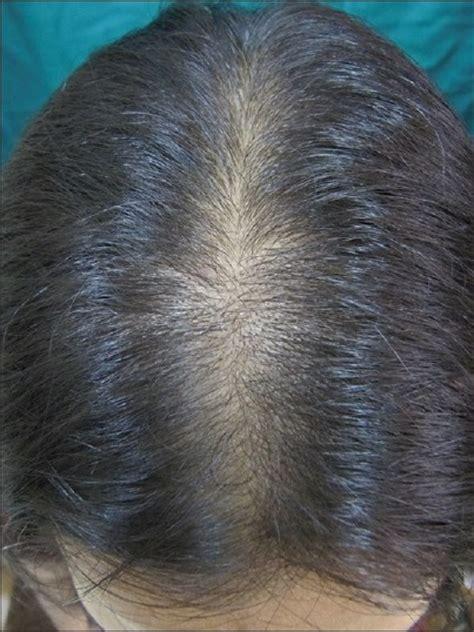 early female pattern hair loss enlever les points noirs sur le menton 2015