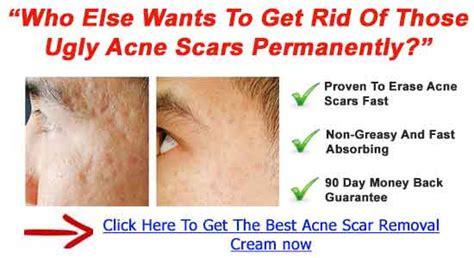 best c section scar treatment best acne scar treatment cream