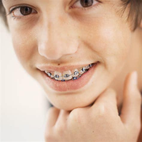 with braces delta dental of arkansas