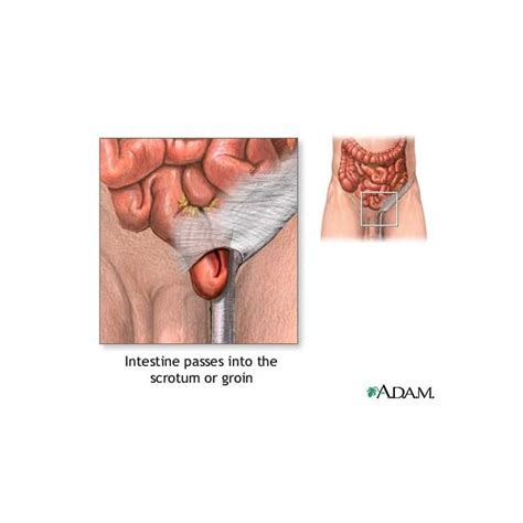 about your hernia inguinal hernia symptoms causes about your hernia inguinal hernia symptoms causes