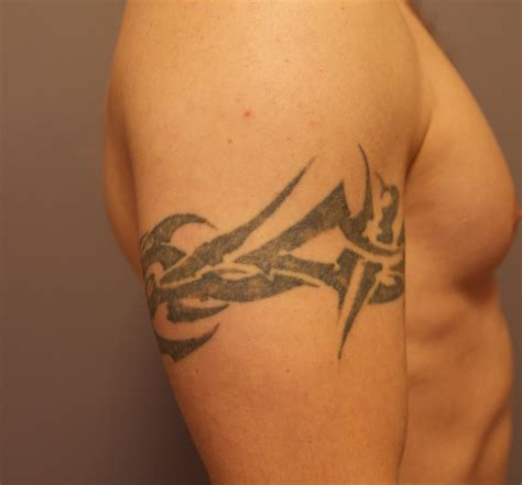 tattoo removal after 3 sessions what are the typical results from laser removal