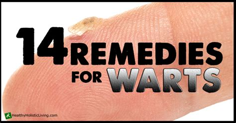 side of foot remedies wart removal home remedy best