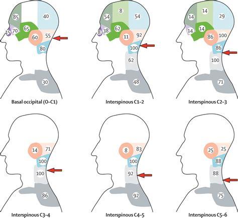define pattern theory of pain cervicogenic headache morphopedics