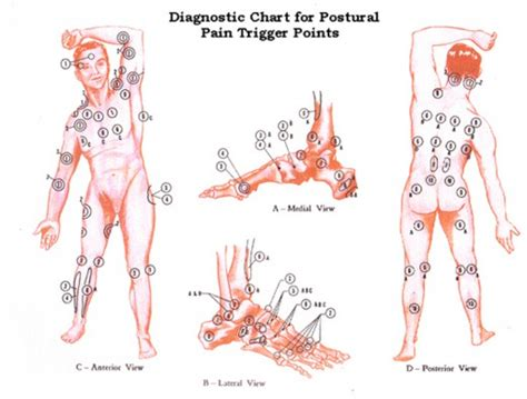 fibromyalgia tender points diagram fibromyalgia a mysterious disease hubpages