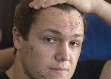 Mat Herpes Pictures wrestler with mat herpes surprised by reaction to his