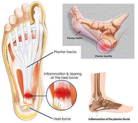 What Is Planter Fascitis by Plantar Fasciitis Causes Symptoms Treatments
