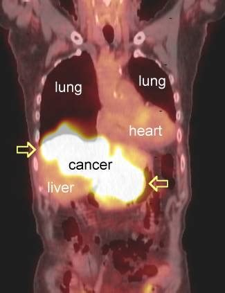 pet scans  cancer cases
