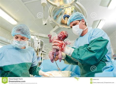 c section procedure time surgeons perfoming abdominal cesarean section stock photo
