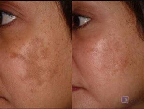 Melasma 5 In 1 treatment pigmentasi youngerlooks