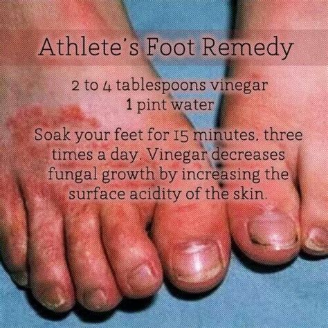 athlete s foot remedy healing