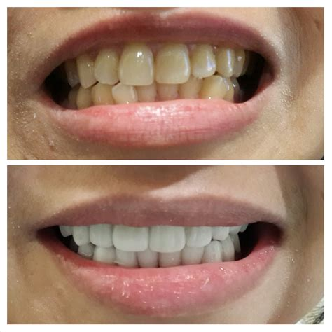 Memutihkan Gigi Di Klinik audy dental cipete audy dental jakarta dental clinic