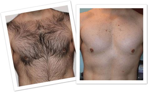 permanent hair removal www permanenthairremoval in