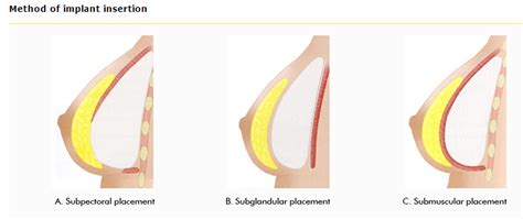 best breast implants to get types of implants for the best breast augmentation