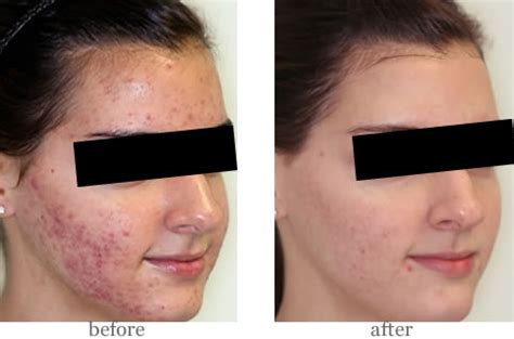 led light therapy before and after nu you skin care revitalizing peels