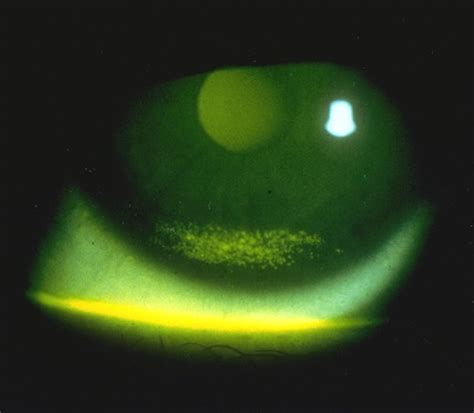 eye stains tricks of the trade fluorescein application techniques for the eye