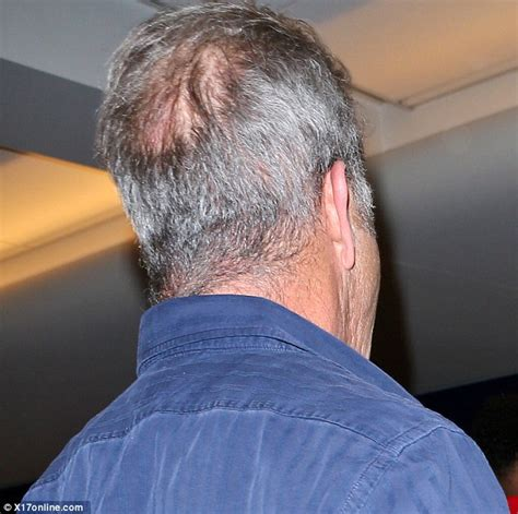 how to hide balding spots on top of the female head mel gibson displays thinning hair and bald spot as he jets