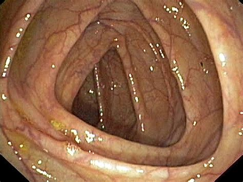 Stool After Colonoscopy by New Guidelines Issued On Bowel Prep For Colonoscopy