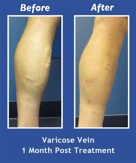 new spider vein treatment dr layke varicose veins before and after windham nashua salem nh