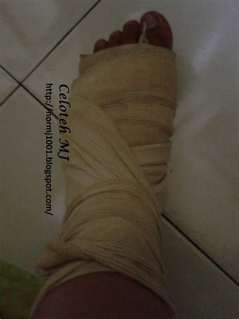 Kain Kumala Mj 02 cara petua merawat bengkak akibat patah retak celoteh mj