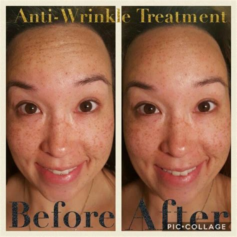 best anti wrinkle treatment before and after senegence anti wrinkle treatment