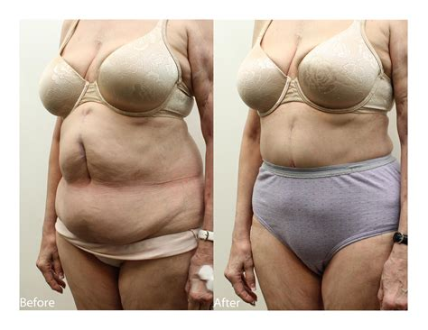 plastic surgery after c section before and after abdominoplasty tummy tuck plastic surgery