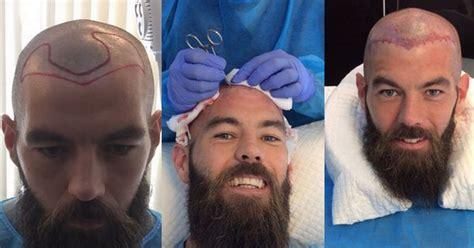 antony cottons hair transplant joe g a hair transplant wales ace joe ledley as you ve