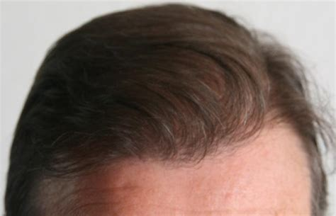 safest hair transplants before and after a hair transplant opinion of a patient
