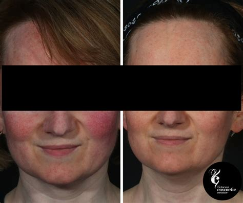 light therapy rosacea all about led phototherapy in australia